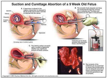 Abortionmethods